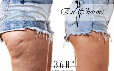 CELLULITE E GAMBE GONFIE: 3 strategie per le gambe perfette
